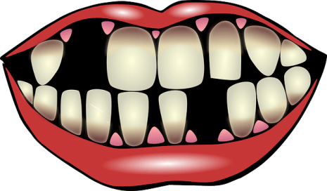 Tooth-loss-465x272