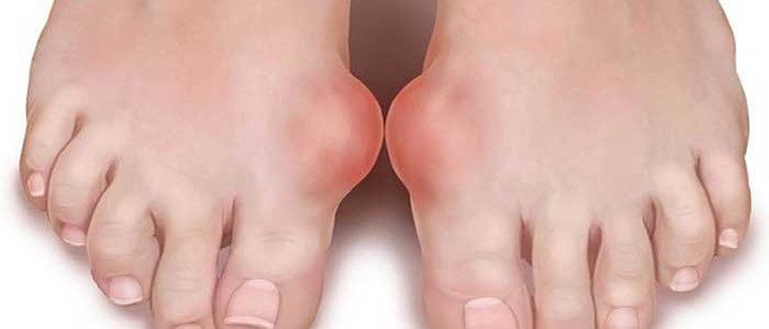 Symptoms-of-gout
